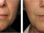 Derma Filler Before & After