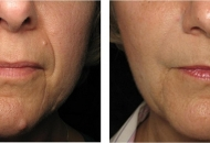 derma filler before and after beehive lane