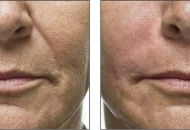 derma filler before and after eastham