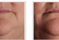 derma filler before and after image