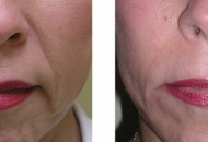 derma filler radiesse-before-after
