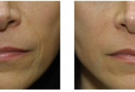 derma filler radiesse_before_and_after_newest