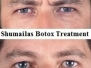 Botox & Dermal Filler: Anti-Wrinkle