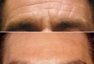 botox-men-injections-before-after-forehead