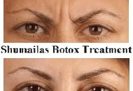 botox_shumailas_antiageing_face_wrinkle_treatment_juvederm_london002