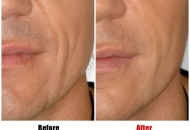 dermal-filler-cheeks-before-after