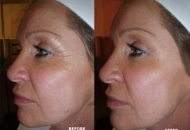 CACI (non surgical face lift)