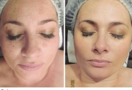 caci_before_after