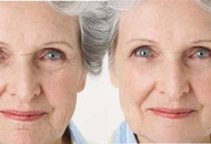 wrinkles-before-and-after_caci