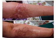 Fade heal scars burn marks on hand derma roller mircro needling