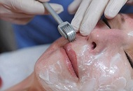 Derma Roller Micro Needling treatment in progress