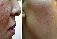 Derma Roller Micro Needling scar reducing treatment before after healing