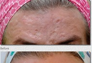 Forehead acne scars faded and filled out by Derma Roller Treatment