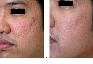 Derma Roller-Micro Needling to even out acne scarring on cheeks
