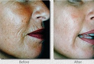 Reduce wrinkles creases on face face lift  tightening treatment