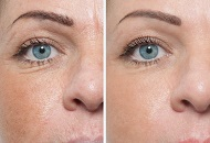 dermaroller micro needling before after wrinkle treatment