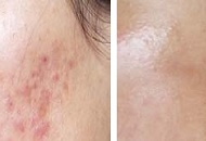 acne scar treatment cheeks derma roller before after