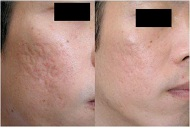 sun damage acne scar pigmentation treatment