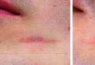 derma roller before after male patient fade scars