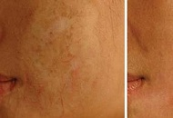 derma roller scar treatment before after
