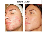 serious type 2 acne solution treatment