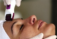 patient undergoing derma roller micro needling treatment