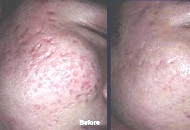 dermaroller-acne-before-after