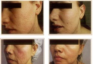 dermaroller micro needling for cheeks