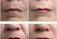 micro-needling-before-after-lip-line