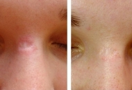 micro-needling-before-after-scar-treatment