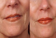 derma roller before after treatment for wrinkles