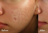 acne scar treatment east london derma roller