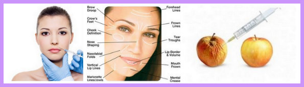 Dermal Fillers to plump and fill skin around the eyes, cheeks, forehead & mouth