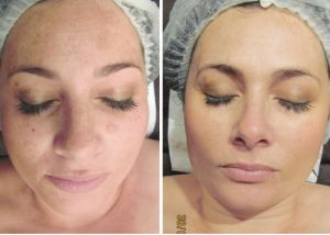 Image of CACI (Non-Surgical Face Lifts) customer, before and after