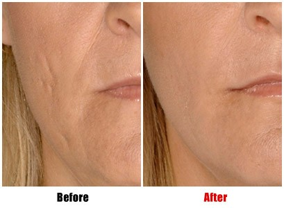 Dermal Fillers Before-After: Nose to Mouth Lines