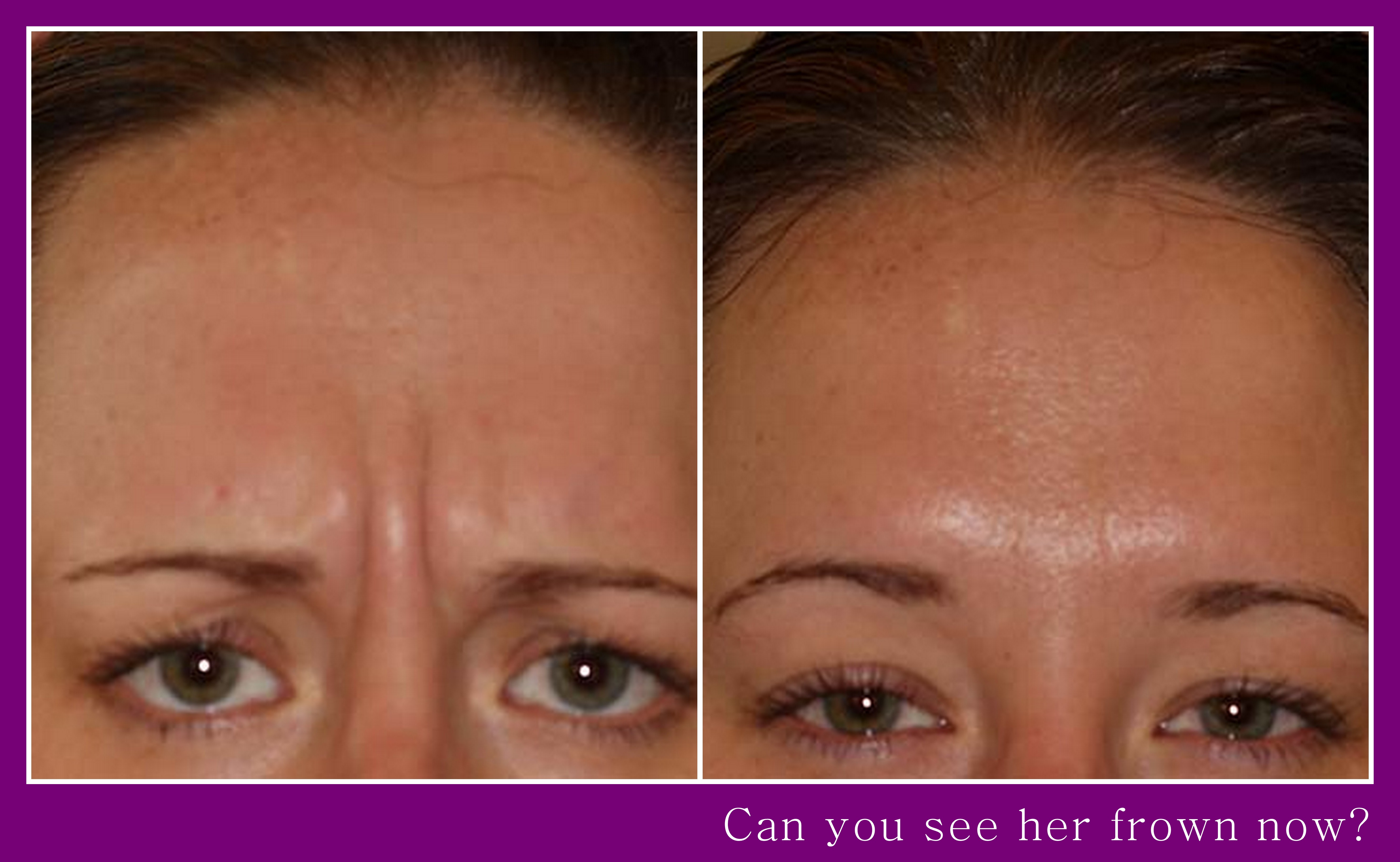 Deep frown lines & wrinkles filled out by Botox Anti-ageing Injections