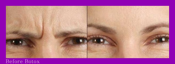Erase Frown Lines on Forehead Before-After Botox