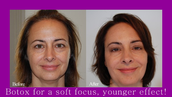 Botox Facial Injections for younger skin