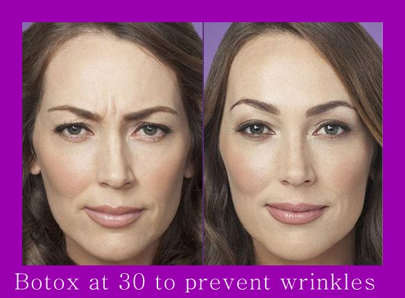 Scowl lines erased after Botox Anti ageing Treatment