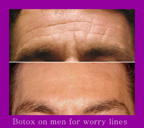 Vertical & Horizontal Lines on Forehead after Botox Injections