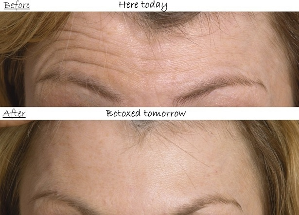 Botox Before-After: Forehead Worry Lines
