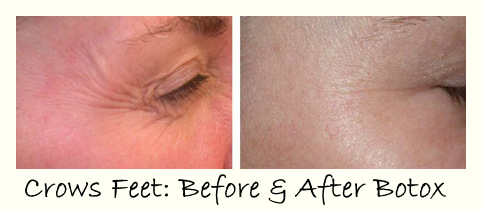 Botox Before-After: Crows Feet
