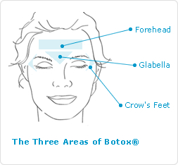 Botox Main Facial Areas: Forehead & Eyes