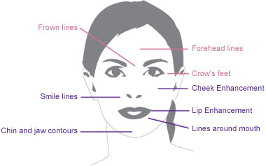 botox-injections-london-essex-facts