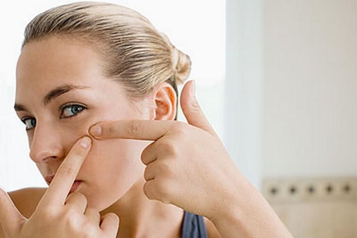 acne breakout treatments