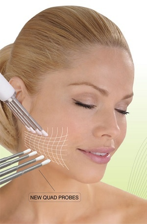 caci jowl lift london facial ilford essex jaw lift chin lift