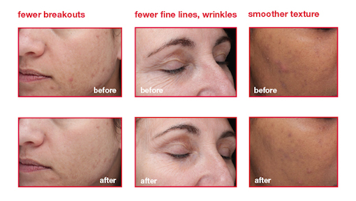dermalogica biosurface peel before-after