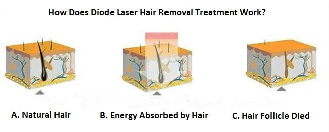 laser hair removal london bridge