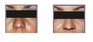 Pigmented-Lesions