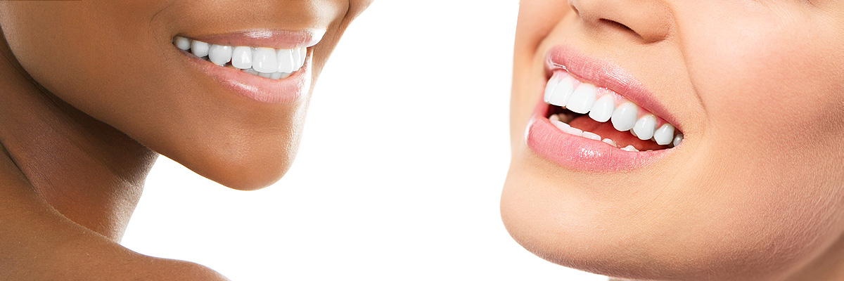 teeth-whitening-header
